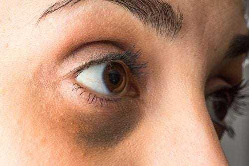 Göz Altı Torbalarınızı Doğal Yoldan Nasıl Tedavi Edebilirsiniz 1