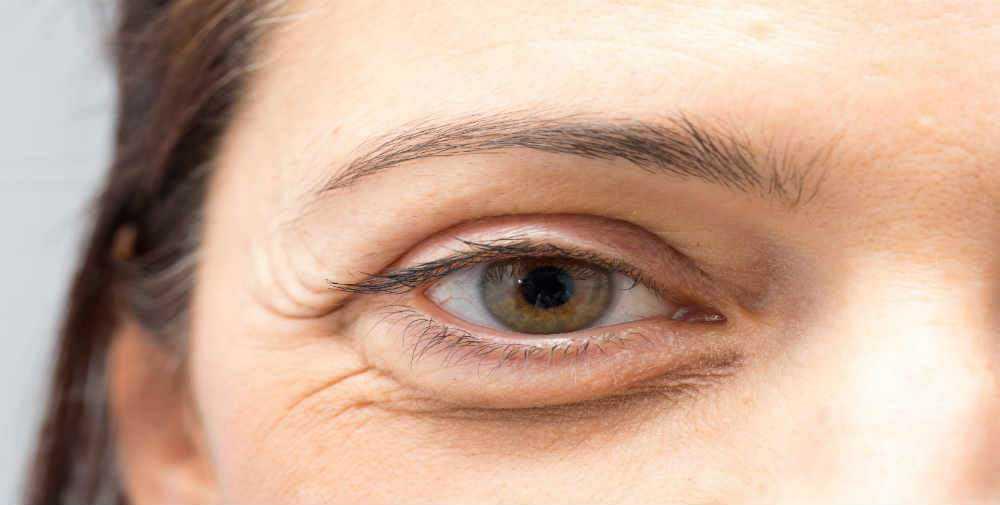Göz Altı Torbalarınızı Doğal Yoldan Nasıl Tedavi Edebilirsiniz 3
