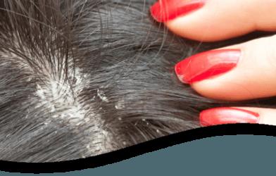 Saç Derisinde Kabuklanma Varsa DİKKAT.. Kabuklanma Neden Olur? 1